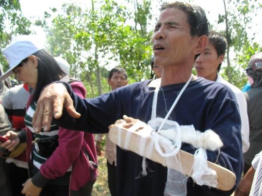 Kỵ sĩ Nguyễn Hữu Chi bị gãy tay do ngã ngựa
