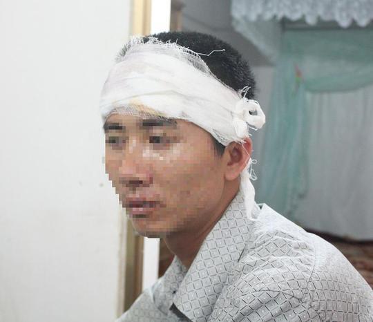 Anh Trần Thạch Anh bị hành hung bị thương phải nhập viện cấp cứu.