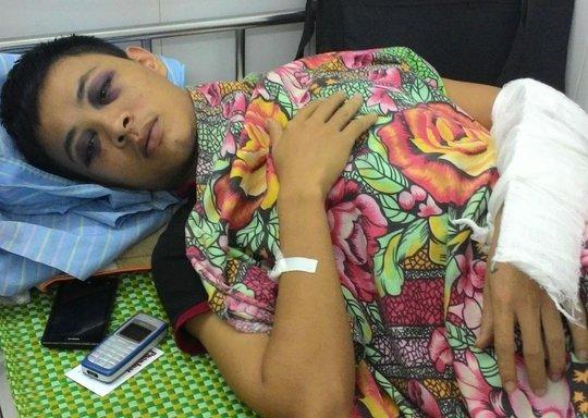 Anh Quyết bị thương đang điều trị tại BV Đa khoa Nghệ An. Ảnh: Nghĩa Đàn.