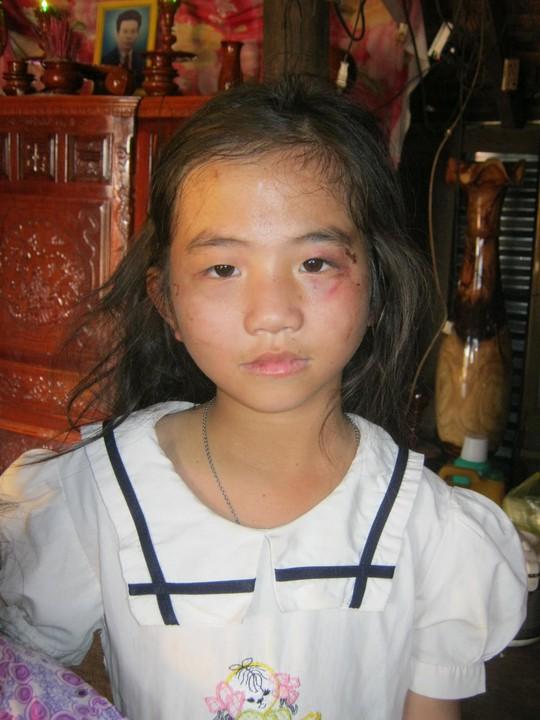 Bé Thúy với những vết thương trên khuôn mặt