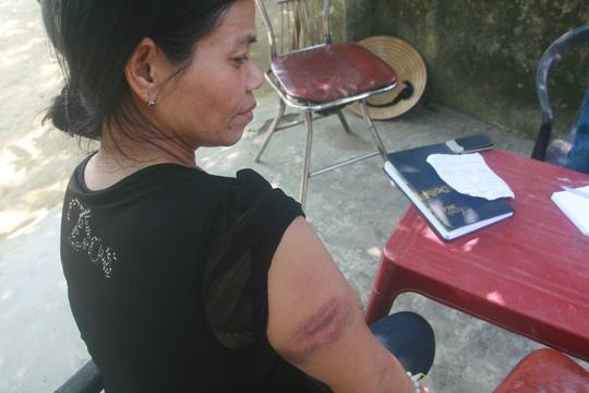 Bà Phạm Thị Tính với vết thương bầm tím trên tay