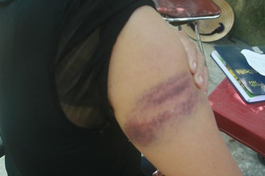 Bà Tính cho rằng bị bảo vệ dùng gậy đánh nhiều lần khiến tay thâm tím như thế này nhưng lãnh đạo bệnh viện nói nhân viên bảo vệ của mình không đánh người