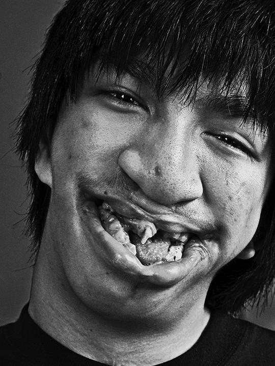 Nỗi đau Da Cam Qua ống Kính Nhiếp ảnh Gia Thu An Mai Vàng