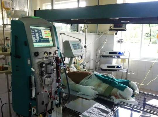 Chiến sĩ bị thương nặng trong vụ máy bay rơi đang được điều trị tích cực tại Viện Bỏng quốc gia. Ảnh do bác sĩ cung cấp