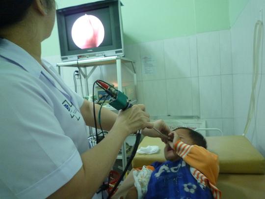 Các bác sĩ tiến hành gắp con vắt trong mũi cháu bé. Ảnh: Bửu Thuyên