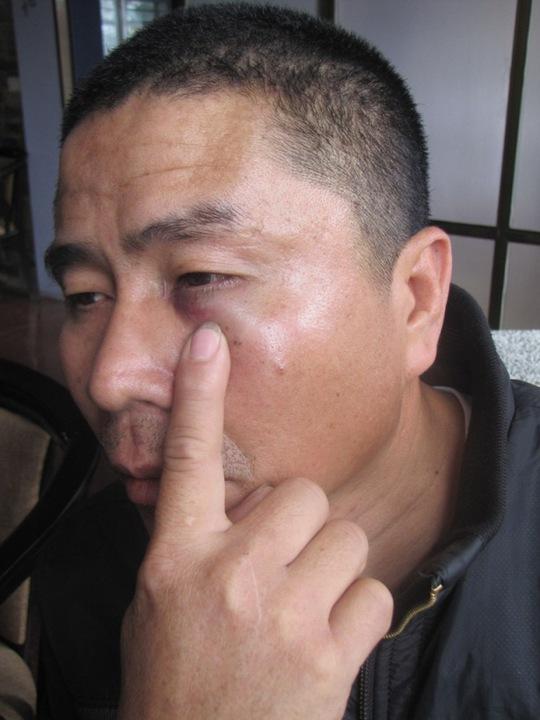 Anh Lê Kim với vết thương ở mắt sau khi bị đánh