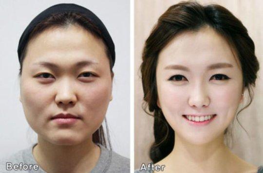Gương mặt trước và sau phẫu thuật thẩm mỹ ở Hàn Quốc