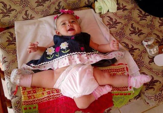 Ana Paula sau khi được tách ra khỏi chị em song sinh