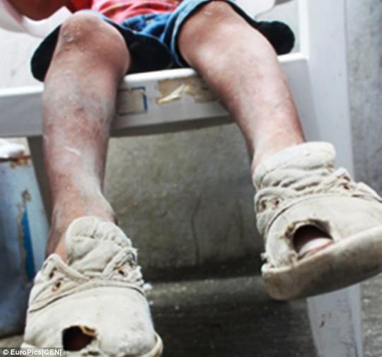 Chân bị bầm tím của cậu bé