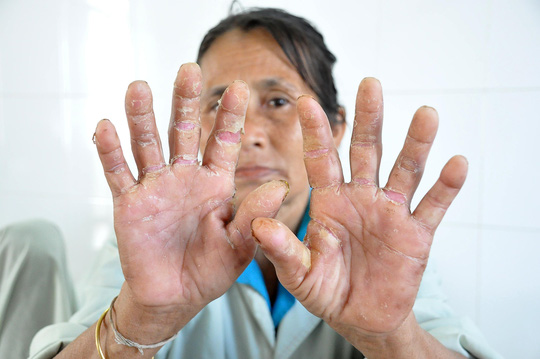 Một bệnh nhân mắc bệnh lạ năm 2013