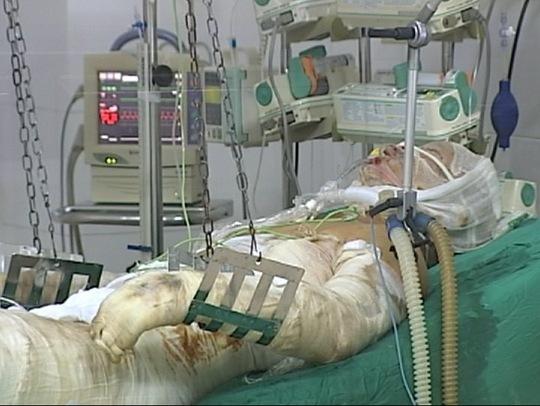 Chiến sĩ bị thương trong vụ trực thăng rơi đang được điều trị tại Viện Bỏng quốc gia