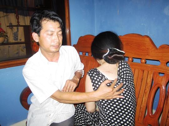 Lưng bà Em bị kẻ cướp châm điện cháy một vết dài gần 10cm