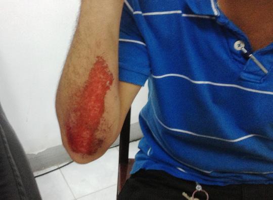 Vết thương của cảnh sát HSĐN trong lúc truy đuổi và bị bọn cướp đạp ngã xe.