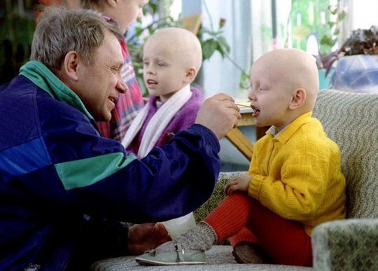 Hai đứa trẻ bị ung thư do tác động của thảm họa được điều trị tại một bệnh viện đặc biệt ở Minsk - Belarus năm 1996. Ảnh: Reuters