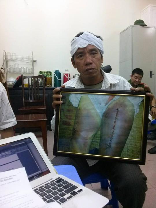 Ông Nguyễn Mậu Đoàn, em trai nạn nhân