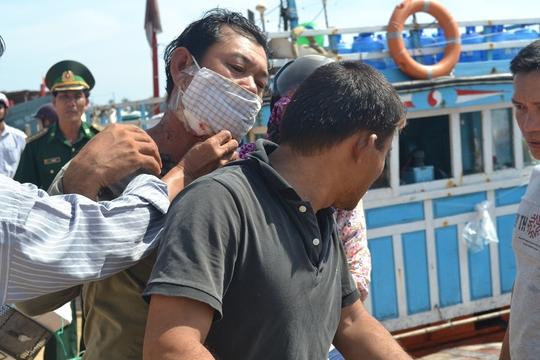 Ngư dân Lê Văn Hường bị mảnh kính văng vào cổ