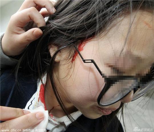 Một fan nữ bị thương do xô đẩy khi thấy thần tượng