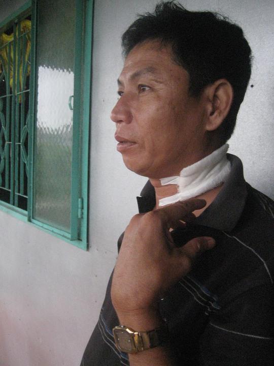 Ông Mai Hoàng đang kể lại việc mình bị chém vào cổ