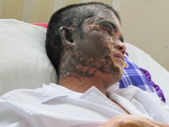 Anh A. bị phỏng nửa khuôn mặt và mắt phải bị tổn thương nặng