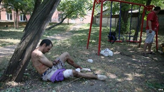A man treats his own wounds after shelling in Donetsk, 14 Aug