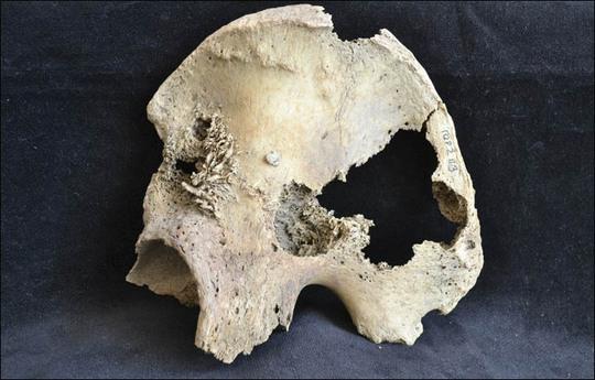 Phát hiện hài cốt bệnh nhân ung thư di căn từ 4.500 năm trước