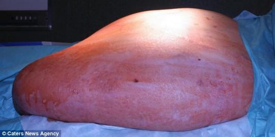 Khối u trong bụng bệnh nhân được các bác sĩ lấy ra