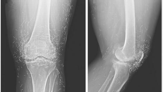 X-quang cho thấy hàng trăm mũi kim vàng trong cơ thể bệnh nhân - Ảnh: Fox News