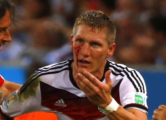 Schweinsteiger với khuôn mặt máu sau pha va chạm với Aguero