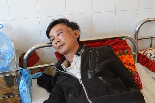 Anh Đỗ Vạn Hoa với nhiều vết thương ở mặt đang được điều trị tại Bệnh viện Đa khoa tỉnh Đắk Lắk