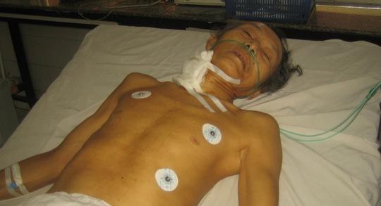 Ông Phạm Văn Bảy đang được cứu chữa tại Bệnh viện Đa khoa tỉnh Bình Phước.