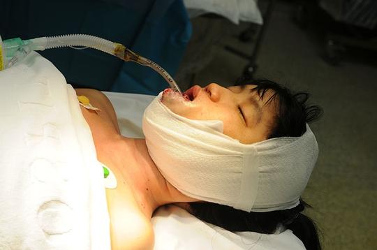 Chị Thi sau khi được phẫu thuật bóc bỏ khối u ở lưỡi, miệng.