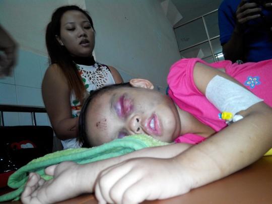 Chị Nhàn túc trực bên bé Ngân trong những ngày đầu tại bệnh viện