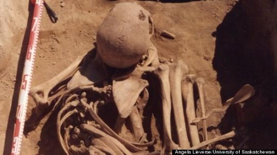 Hài cốt được cho là của bệnh nhân ung thư di căn từ hàng ngàn năm trước