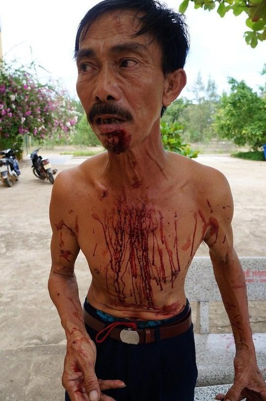 Ông Oai bị nhóm thanh niên đánh rách cằm, máu chảy khắp người.