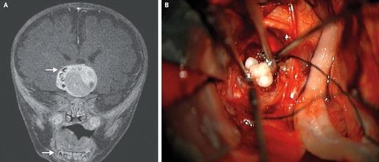 Chiếc răng trong khối u não của bé trai 4 tháng tuổi - Ảnh Live Science