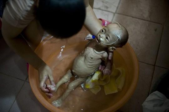 Bé gái Viên Viên với căn bệnh đáng thương khiến thân hình còi cọc