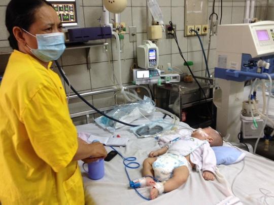 Bé K.Đ.A (4 tháng tuổi, ở Hưng Yên) nguy kịch vì biến chứng sởi đang được điều trị tại BV Bạch Mai (Hà Nội)
