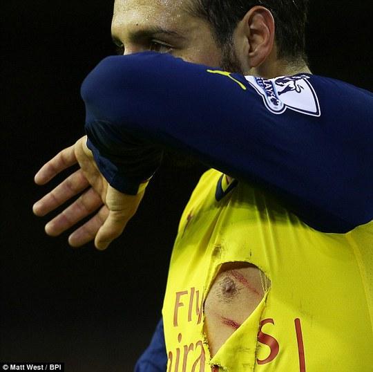 Vòng 17 Premier League đầy máu