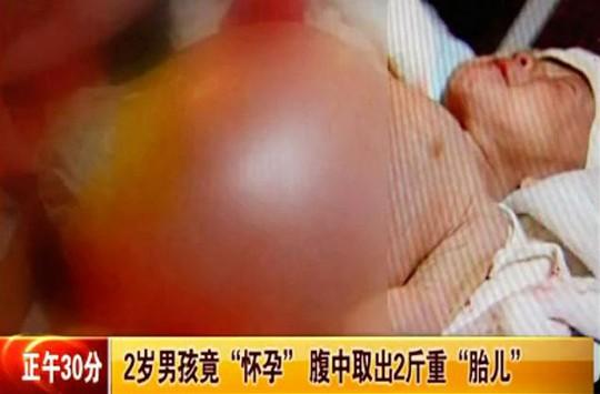 Bé Xiao Feng bụng phình to bất thường. Ảnh: v.youku.com