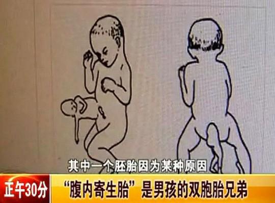 Nếu thai nhi phát triển bé Xiao có thể sẽ mất mạng. Ảnh: v.youku.com