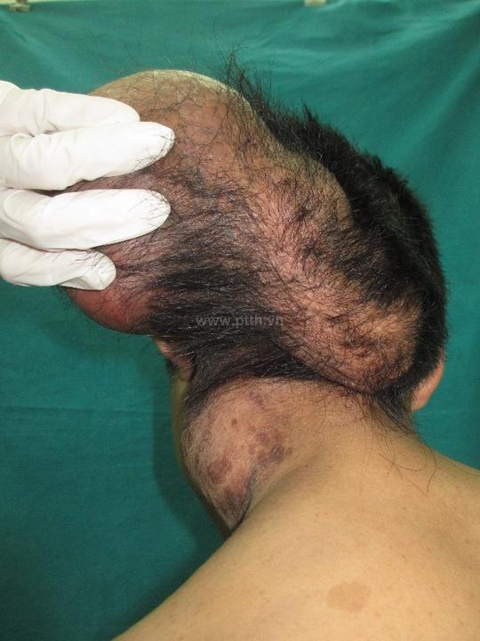 Khối u khổng lồ trên đầu bệnh nhân Lường Văn C.
