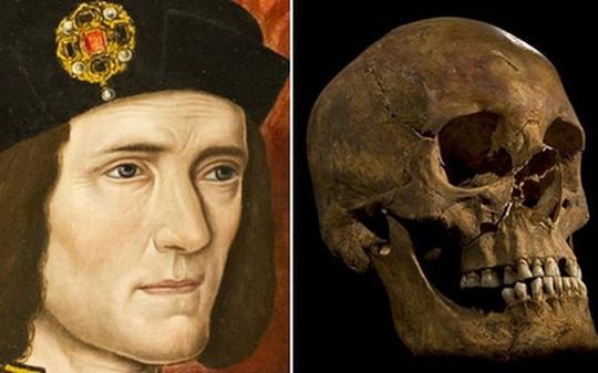 Đội pháp y đã nghiên cứu di hài Vua Richard III để xác định bản chất của vết thương và vũ khí khiến ông qua đời. (Nguồn: BBC News)