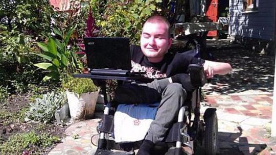 Anh Valery Spiridonov tình nguyện tham gia ca cấy ghép đầu người. Ảnh: Youtube