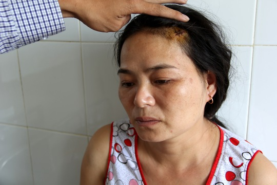Chị Nguyễn Thị Thúy tố cáo bị chồng hành hung khiến thương tích khắp người