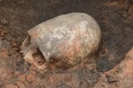 Chiếc hộp sọ hình quả trứng tìm thấy ở Nga. (Nguồn: Mirror)