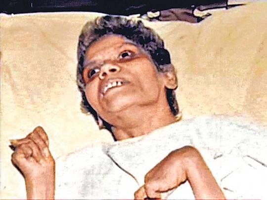 Bà Shanbaug lúc về già