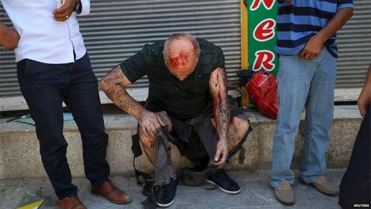 Ít nhất 28 người chết và gần 100 người bị thương trong vụ đánh bom. Ảnh: Reuters
