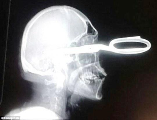Hình ảnh X-quang của