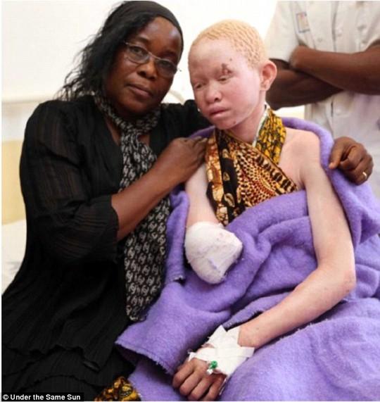 Tanzania: Người bạch tạng bị cắt chi, buôn bán như động vật