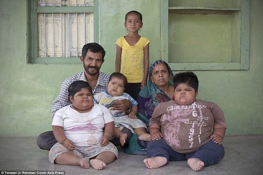 Gia cảnh nghèo khó của gia đình có 3 con mắc bệnh lạ gây khổng lồ